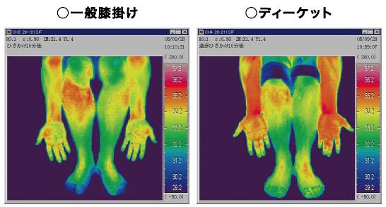 サーモグラフィーによる皮膚表面温度比較