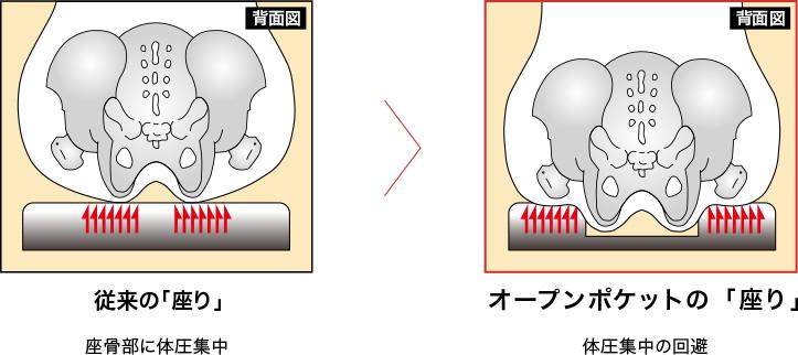 お尻の痛みの原因は、座骨部への体圧集中。