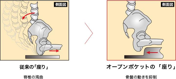 腰の痛み疲れの原因は、脊椎の湾曲。